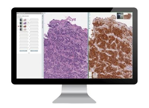 Leica Biosystems全新数字病理学产品问世